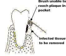 plaque inaccessible to brushing