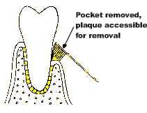 reduction of pocket-plaque is accessible