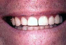 teeth repaired with porcelain veeners