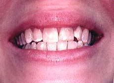 discolored teeth and a rotated incisor