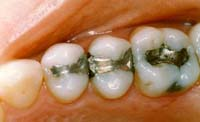 three teeth restored with amalgam